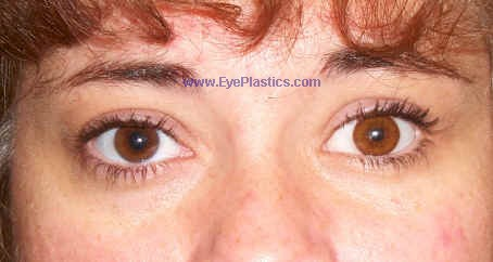 Enhance Prosthetic Eye Motility with